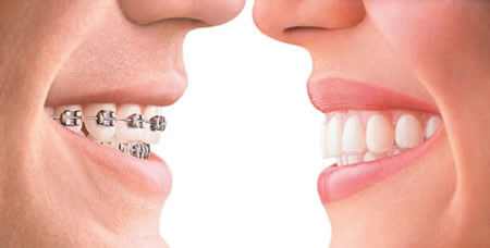broches-vs-invisalign